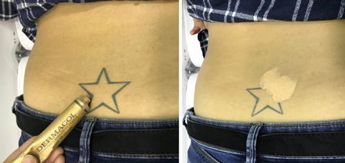 Cobrir Tatuagem - Passo 2 - Aplicação da base Dermacol Make-up Cover