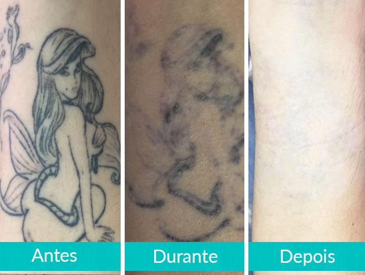 Clareamento de Tatuagem para Cover-Up - Antes, Durante e Depois