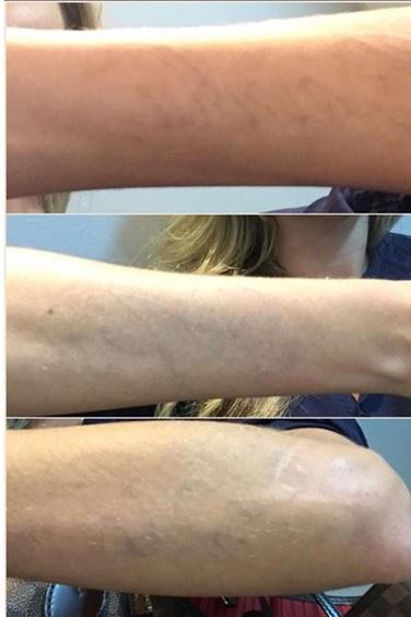 Bárbara Evans | Remoção de tatuagens a laser
