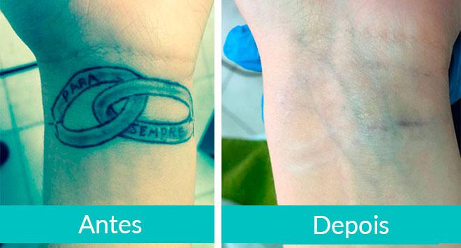 Remoção de Tatuagens - Antes e Depois