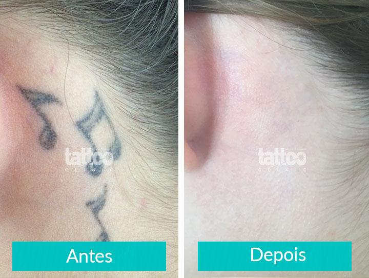 Remoção de Tatuagem - Antes e Depois