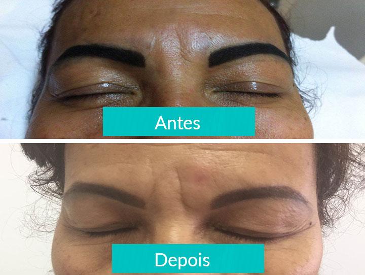 Remoção de micropigmentação - Antes e Depois